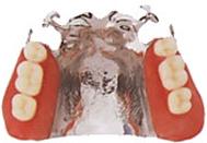 埼玉県蓮田市 蓮見歯科医院 入れ歯・義歯 部分入れ歯