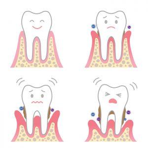 歯周病ってどんな病気?